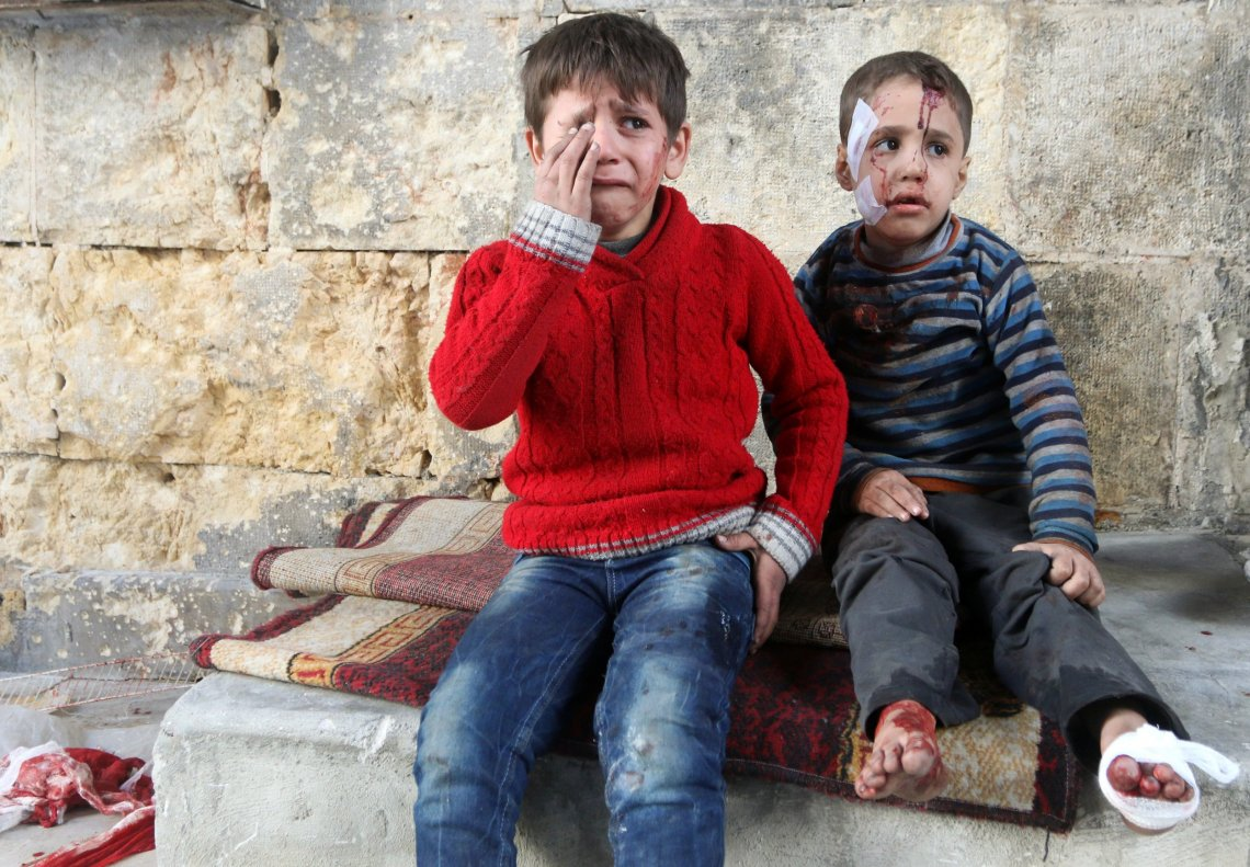 2 young Syrian boys with blood and bandages over their face and feet. The older boy is crying in fear.