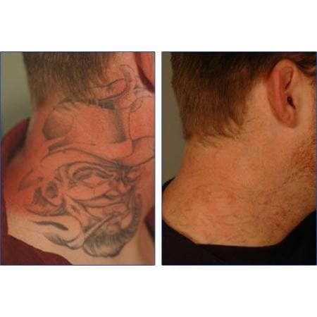 canberra tattoo removal tattoo removal 73 anthony rolfe ave gungahlin