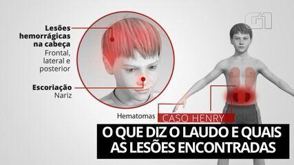 Morte Henry: o que diz o laudo e quais foram as lesões encontradas no corpo do menino