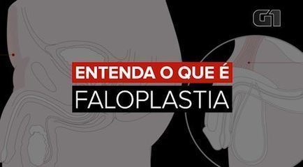 Understand what is phalloplasty, surgery on the penis that the singer Tiago underwent