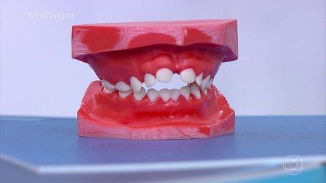 Imperfeições da mordida estão entre os principais problemas odontológicos