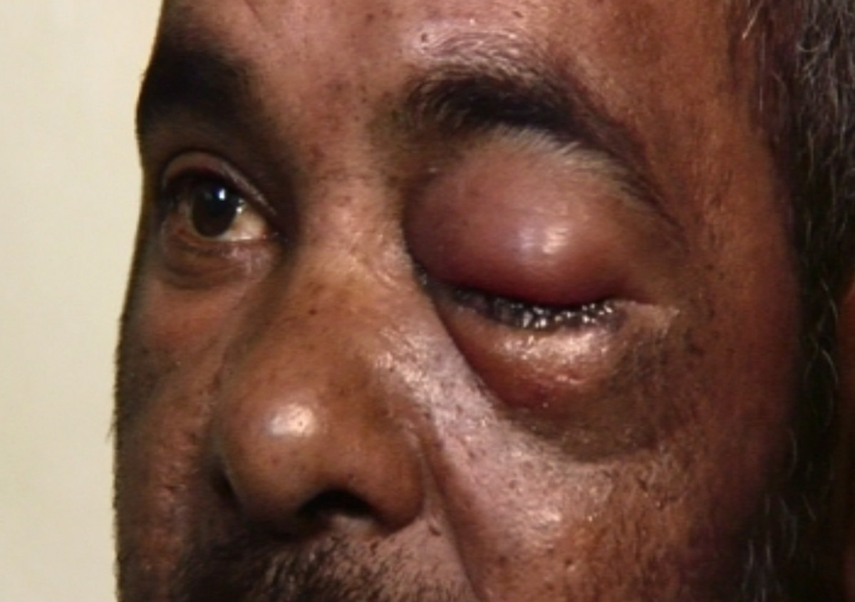 This 40-year=old fisher and his three friend found themselves at Groote Schuur hospitals blinded by a rubber bullet fired by the police. He keeps the bullet in a jar on top of his television set