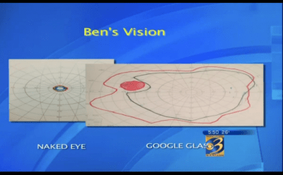 Diagram showing how Benjamin's vision improved after using Google Glass