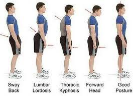 Cara Memperbaiki Postur Tubuh Bungkuk