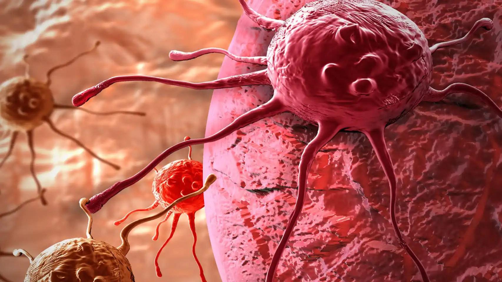 Ilustración de una célula cancerosa.