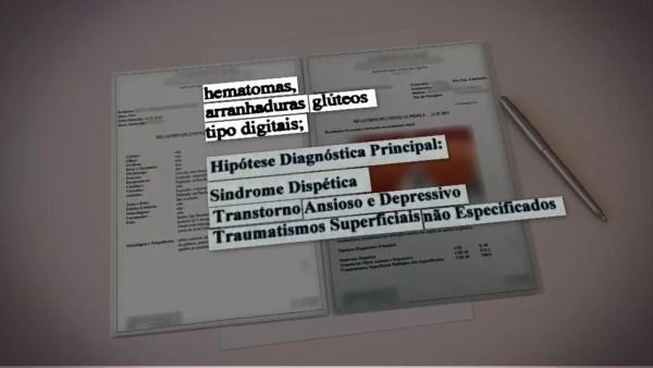 Laudo aponta hematomas e arranhaduras em mulher que acusa Neymar — Foto: TV Globo/Reprodução