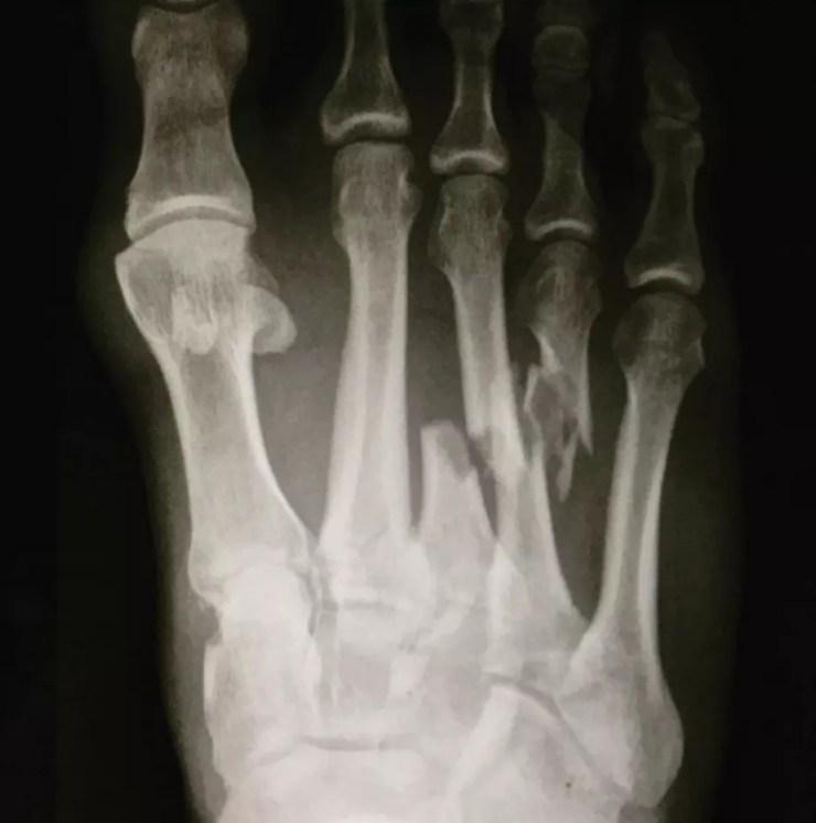 Kelly Slater se machuca, sai de ambulância de J-Bay e mostra fratura no pé em raio-X