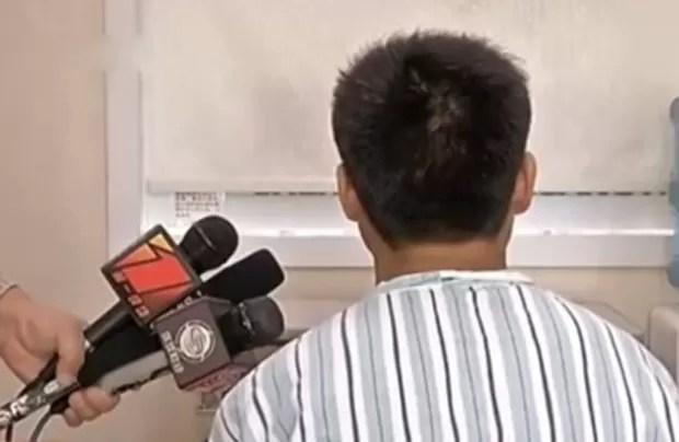 Paciente contou que inseriu o objeto na ureta como um 'cateter caseiro' para tratar uma infecção no trato urinário (Foto: Reprodução/YouTube/Zhongguo xinwen)