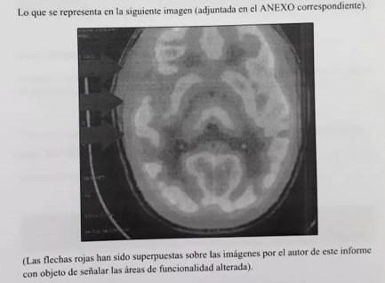 Perícia neurológica de imagens apontou anomalias em área do cérebro de Patrick Nogueira — Foto: Reprodução