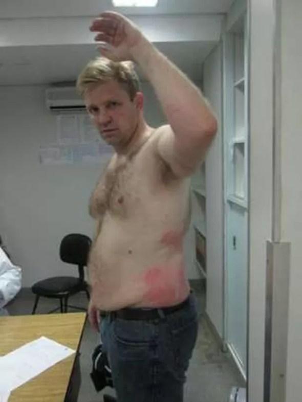 Gary Lee Heaton acusou ex-mulher de o atacar com água fervendo  (Foto: Arquivo pessoal/BBC)