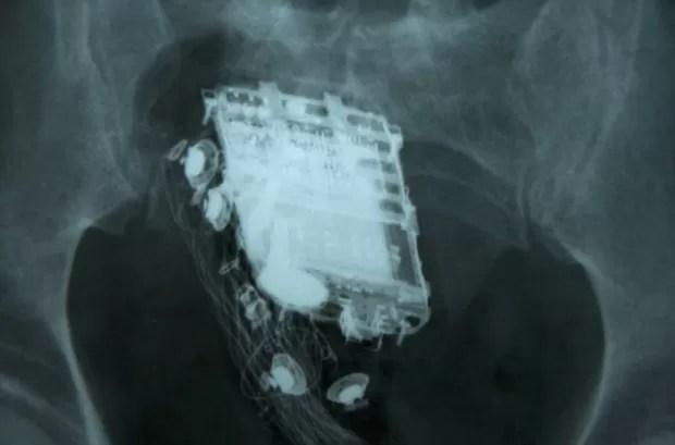 Raio-X mostra o telefone celular no reto de prisioneiro de 58 anos em Colombo, no Sri Lanka (Foto: AFP)