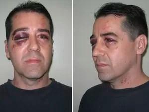 Morador reclama de som alto e é agredido em Guaratinguetá, SP (Foto: Arquivo Pessoal/Alex Coimbra)