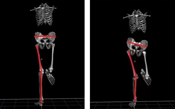 """Avaliação biomecânica da corrida. A figura do lado esquerdo é o instante em que  o corredor toca o solo e a figura do lado direito é o momento em que ele   descarrega o peso no solo. Repare no """"valgismo dinâmico"""" do membro direito"""