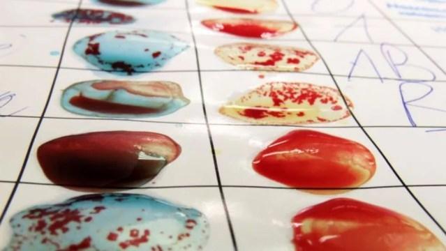 Teste de identificação de tipos sanguíneos — eles já foram associados a maior ou menor risco para doenças como malária e hepatite B — Foto: Getty Images/Goja1 via BBC
