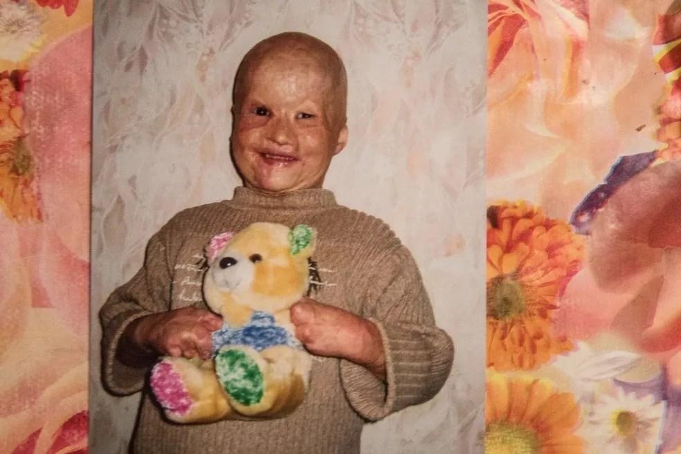 Lyosha diz que costumava odiar as pessoas porque achava que elas o tratavam como um animal — Foto: Pavel Volkov/BBC