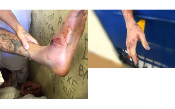 Sindicato dos Agentes Penitenciários do DF publicou imagens de detentos da Papuda com sintomas de doença infecciosa  (Foto: Sindicato dos Agentes Penitenciários/Divulgação)