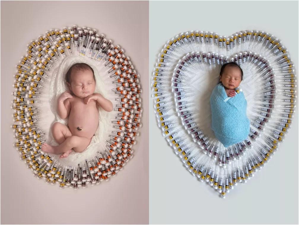 Ainda recém-nascidos, Bia e Lucas foram fotografados com as injeções que Viviane precisou aplicar durante a gestação (Foto: Cláudia Oseki/DIvulgação)