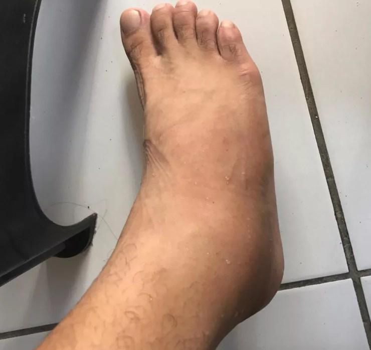Após ser atropelado, Gomes teve alguns ligamentos do pé rompidos e está com a perna imobilizada — Foto: Arquivo pessoal