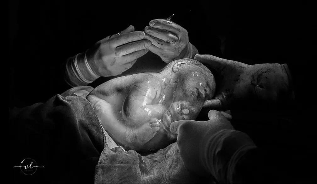 Partos que ocorrem desta maneira não trazem risco para a mãe ou para o bebê, segundo o obstetra — Foto: Vanuza Lolatto/Reprodução