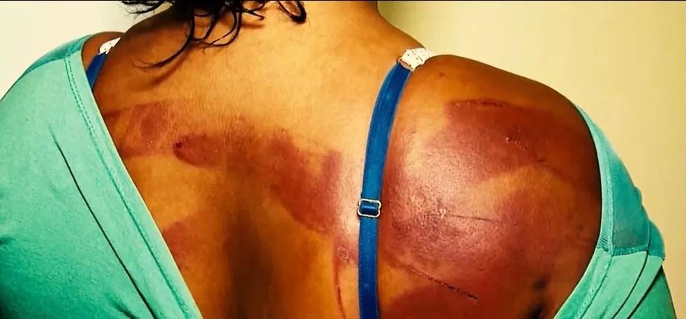 Lesão corporal está inserido no capitulo dos crimes contra a vida, no artigo 129 do Código Penal, que pune a conduta de alguém ofender a integridade física ou a saúde de outra pessoa — Foto: TV Mirante