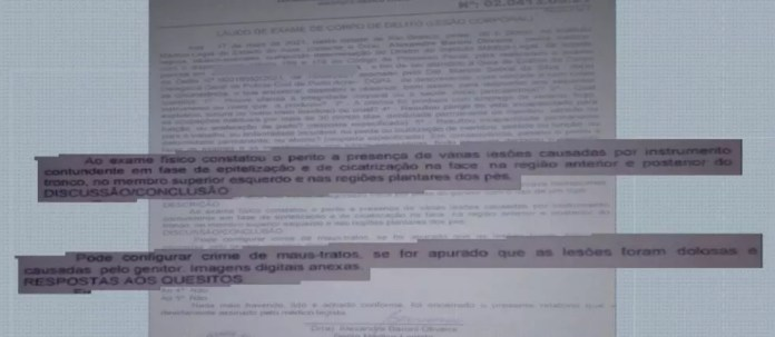 Laudo aponta possíveis maus-tratos contra criança de 3 anos  — Foto: Reprodução/Rede Amazônica Acre