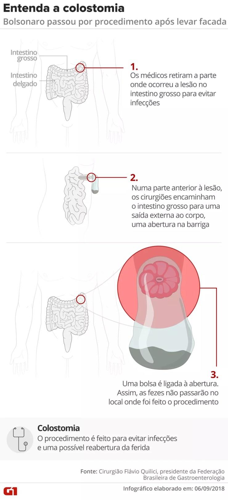 Colostomia: entenda o procedimento pelo qual passou Bolsonaro — Foto: Igor Estrella e Alexandre Mauro/G1