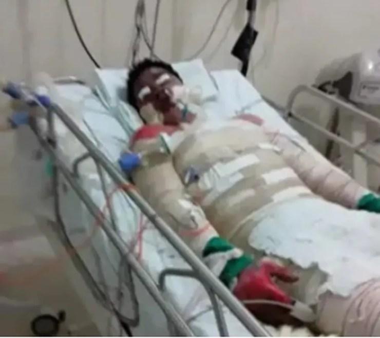 Trabalhador rural ficou com 95% do corpo queimado após acidente com lamparina — Foto: Arquivo pessoal