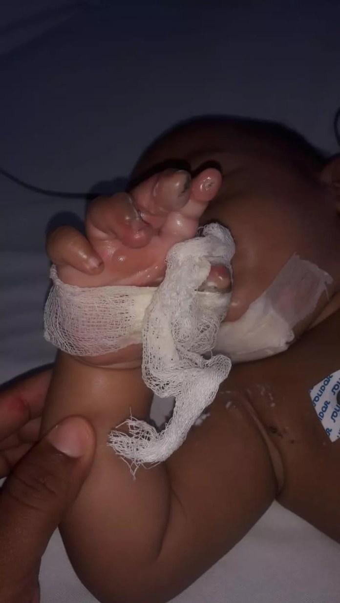 Bebê teria colocado conector de carregador na boca — Foto: Divulgação