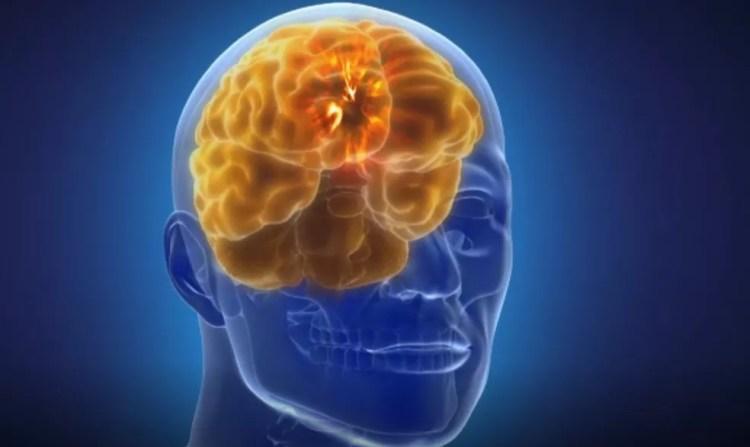 """O avanço da tecnologia vai nos permitir criar um """"cérebro customizado"""", melhorando seu funcionamento e, por consequência, a saúde mental do paciente. — Foto: Reprodução/BBC"""