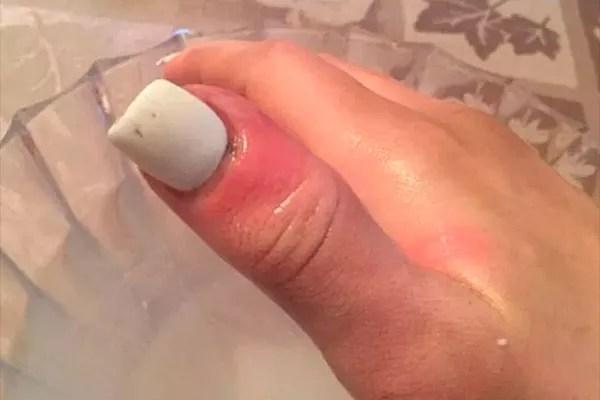 A infecção no dedo da modelo Karolina Jasko (Foto: Reprodução Facebook)