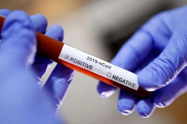 Pernambuco confirmou dois casos do novo coronavírus; foto ilustrativa mostra adesivo com resultado positivo — Foto: Dado Ruvic/Reuters/Arquivo