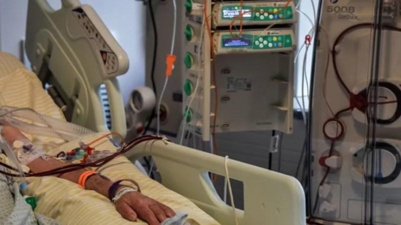Paciente internado na UTI do hospital Albert Einstein, em São Paulo — Foto: NELSON ALMEIDA/AFP VIA GETTY IMAGES via BBC