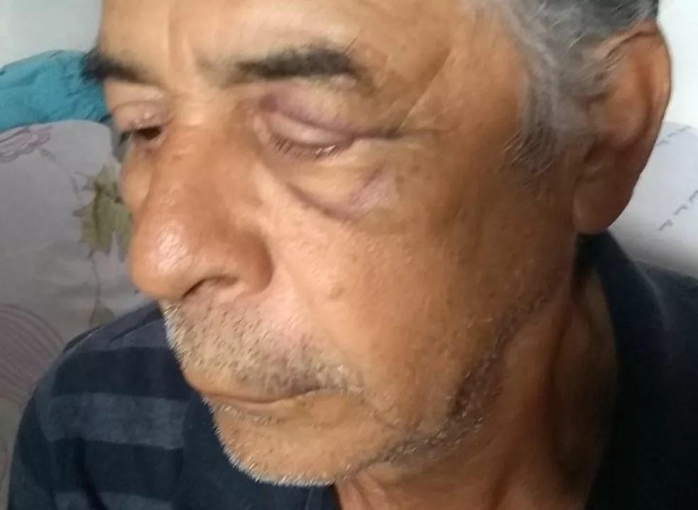 Idoso de 67 anos agredido por policial militar em Ceilândia, no DF (Foto: Arquivo pessoal)