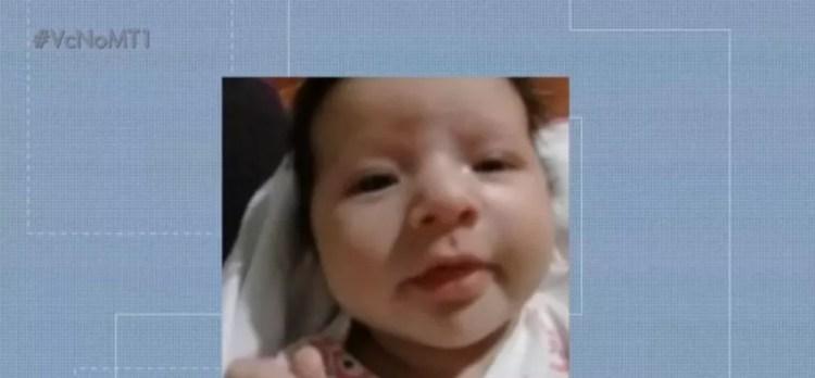 Eloísa da Silva Munhak, de 53 dias, está em estado grave de saúde. — Foto: TVCA/Reprodução