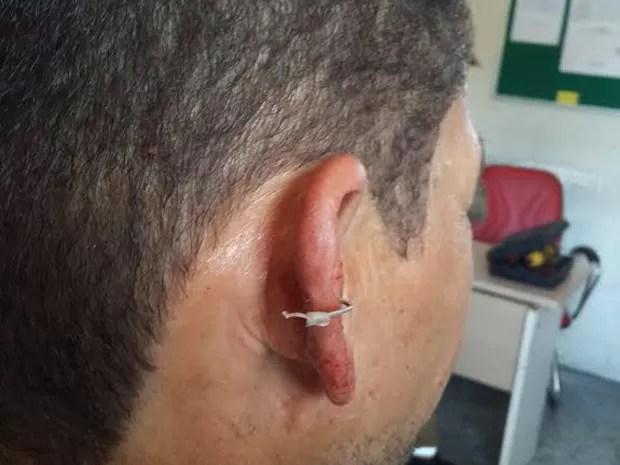 Anzol ficou cravado na orelha do pescador e teve de ser retirado no hospital (Foto: Thiago Arcanjo/Arquivo Pessoal)