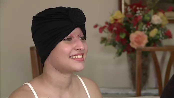 Débora deve passar por novas cirurgias em 2020 — Foto: Reprodução/TV Globo