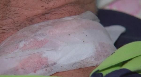 Corte no pescoço do motociclista atingido por cerol (Foto: Reprodução/TV TEM)