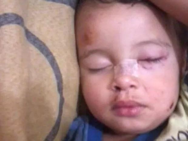Garoto teve ferimentos no nariz, em um dos olhos e no pescoço após ataque de cachorro (Foto: Reprodução EPTV)