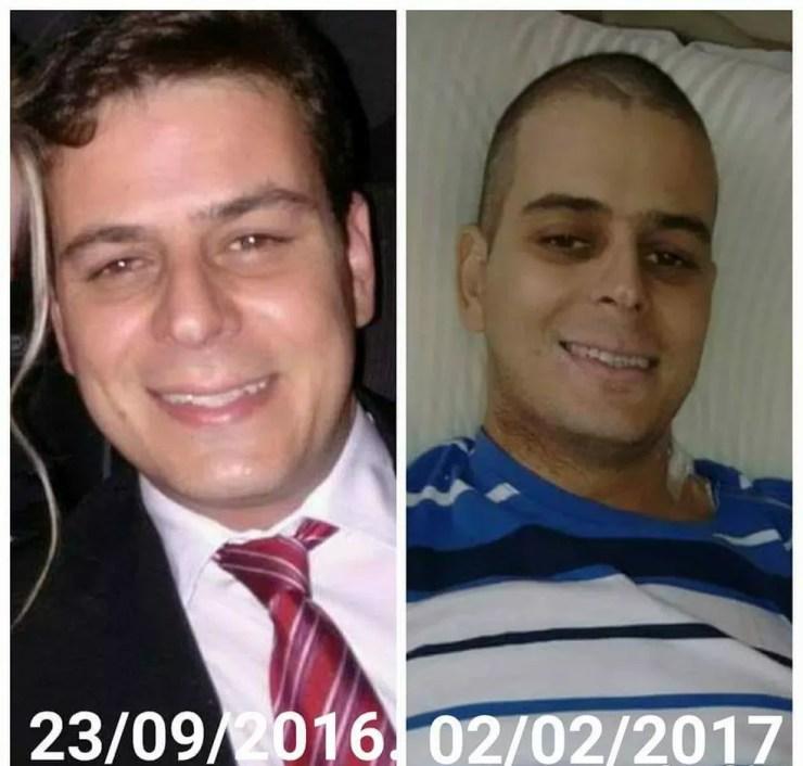 Em cinco meses de tratamento, entre 2016 e 2017, Thiago emagreceu mais de 10 quilos - Sorocaba  (Foto: Arquivo Pessoal)