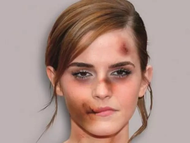 Emma Watson, a Hermione da série 'Harry Potter', também cedeu foto para a campanha (Foto: Alexsandro Palombo)