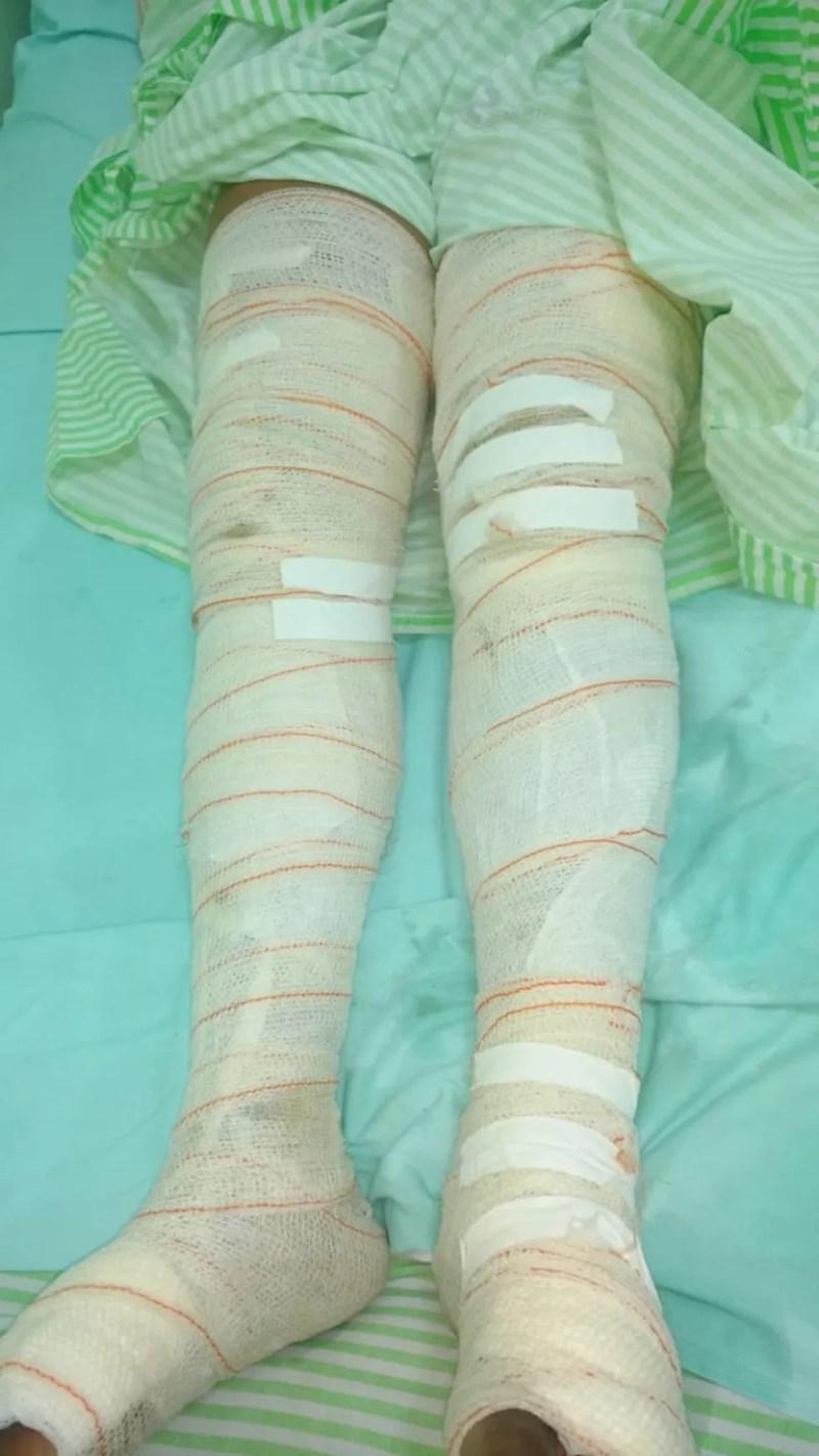Mulher teve braços e pernas queimados e ficou 15 horas sofrendo com a dor dos ferimentos, impedida pelo marido de pedir ajuda. — Foto: Polícia Civil de Água Clara/Divulgação