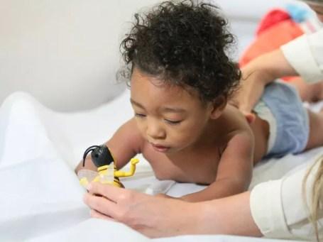 Aos 10 meses, Allan Miguel só foi diagnosticado com a malformação aos 7 meses (Foto: Marlon Costa/Pernambuco Press)