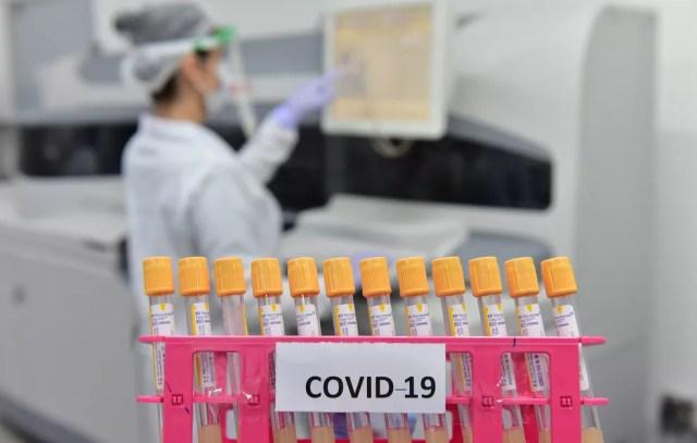 Equipamento automatizado para pesquisa de anticorpos contra o vírus SARS-CoV-2 (Covid-19) e outras análises — Foto: Ector Gervasoni