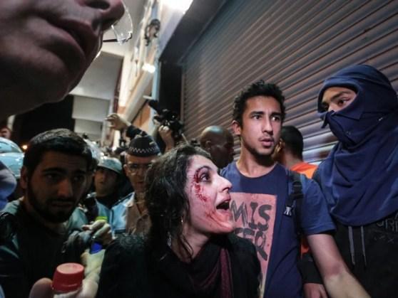 Mulher ferida no rosto conversa com policiais durante protesto (Foto: Gabriela Biló/Futura Press)