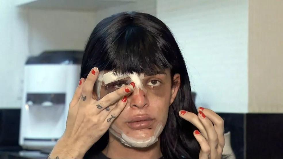 Alice Felis, modelo trans vítima de agressão em casa — Foto: Reprodução/TV Globo