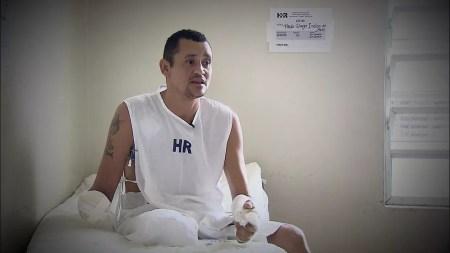 Pablo ficou 33 dias internado no Hospital da Restauração, no Recife, onde passou por seis cirurgias (Foto: Reprodução/TV Globo)