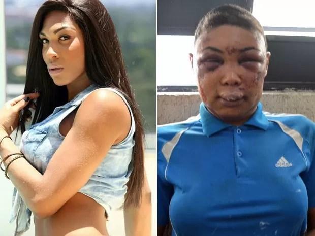 Travesti fica desfigurada após prisão; Defensoria diz haver indício de tortura  (Foto: Foto: Reprodução/Facebook; Divulgação/Defensoria Pública)