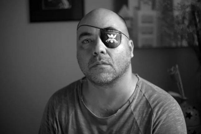 O fotógrafo Alex Silveira, que perdeu quase toda a visão do olho esquerdo após tiro de bala de borrcha em protesto — Foto: Sérgio Silva/Divulgação