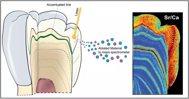 Diagrama esquemático do uso da análise de ablação a laser para mapear a concentração de estrôncio e urânio dentro de um dente (Foto: Renaud Joannes-Boyau/Southern Cross University)