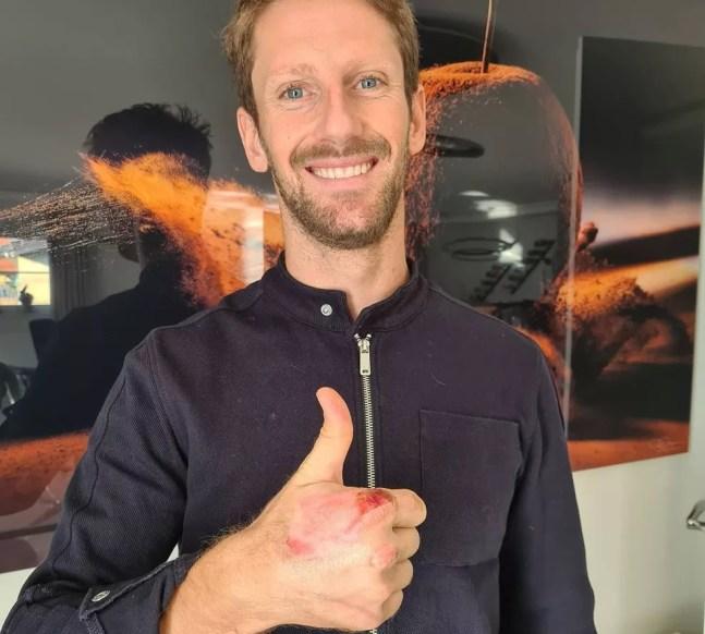 Romain Grosjean mostra a mão com queimadura após acidente no Barein — Foto: Reprodução/rede social